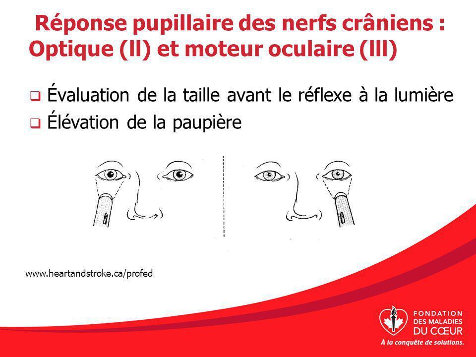 Réponse pupillaire des nerfs crâniens : Optique (ll) et moteur oculaire (lll) Évaluation de la taille avant le réflexe à la lumière Élévation de la paupière www.heartandstroke.ca/profed