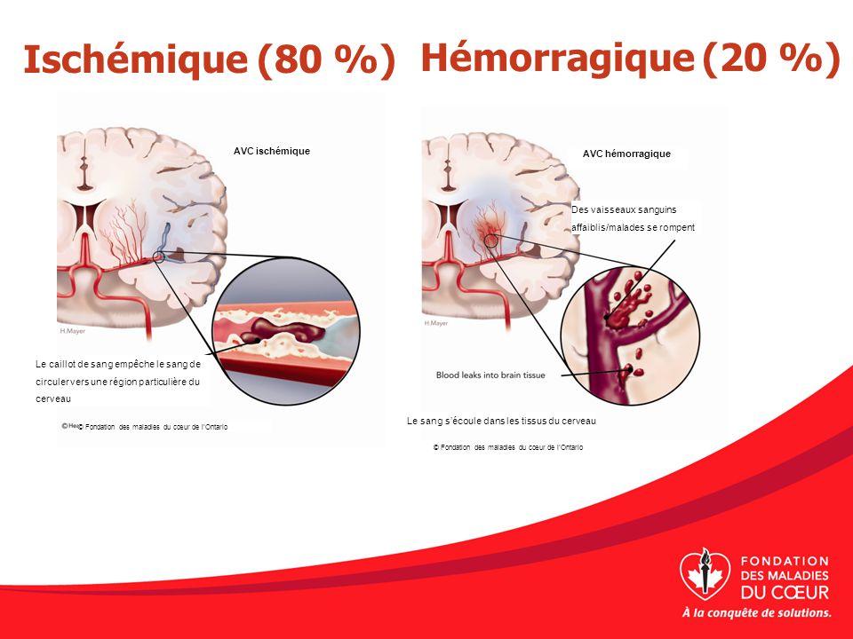 Ischémique (80 %)Hémorragique (20 %) AVC ischémique AVC hémorragique Des vaisseaux sanguins affaiblis/malades se rompent Le sang sécoule dans les tiss