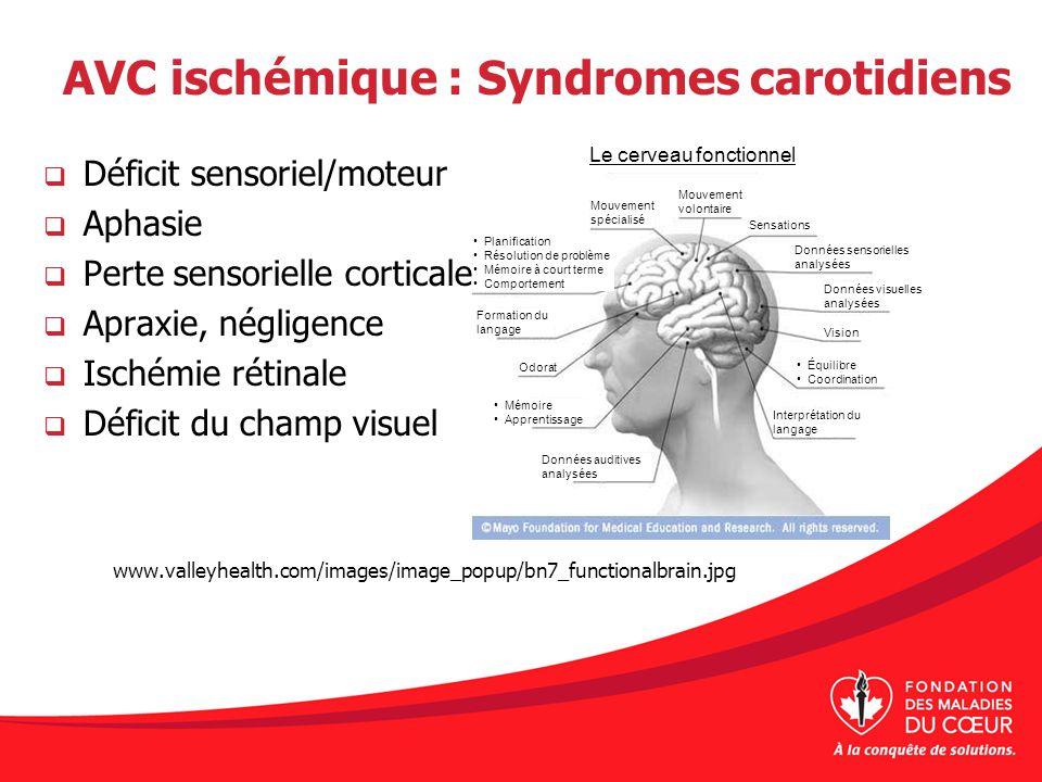 AVC ischémique : Syndromes carotidiens Déficit sensoriel/moteur Aphasie Perte sensorielle corticale Apraxie, négligence Ischémie rétinale Déficit du c