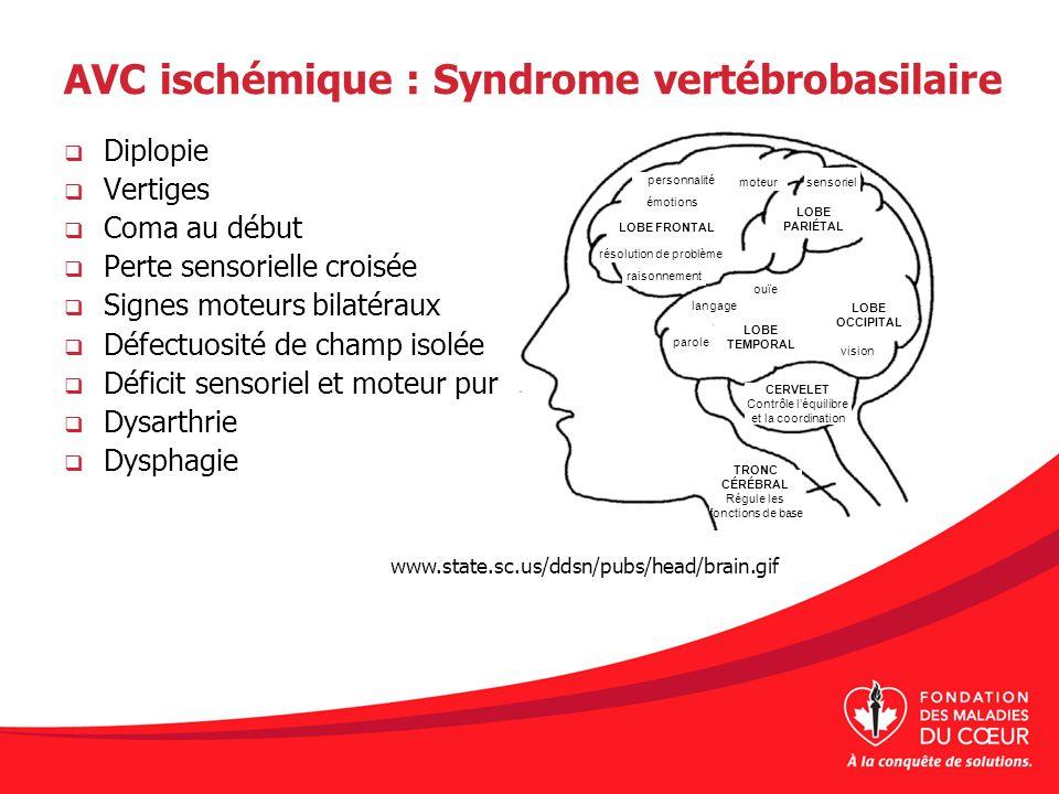 AVC ischémique : Syndrome vertébrobasilaire Diplopie Vertiges Coma au début Perte sensorielle croisée Signes moteurs bilatéraux Défectuosité de champ
