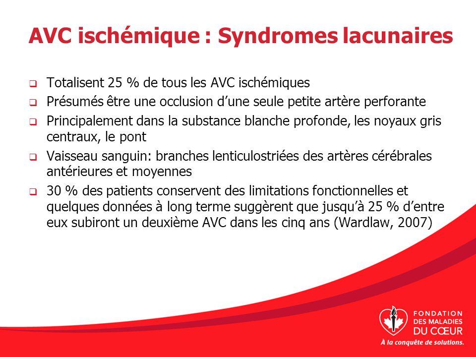 AVC ischémique : Syndromes lacunaires Totalisent 25 % de tous les AVC ischémiques Présumés être une occlusion dune seule petite artère perforante Prin