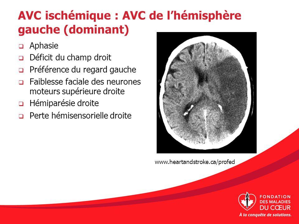 AVC ischémique : AVC de lhémisphère gauche (dominant) Aphasie Déficit du champ droit Préférence du regard gauche Faiblesse faciale des neurones moteur