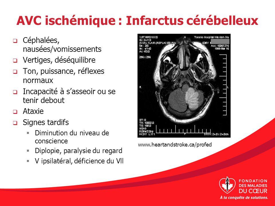 AVC ischémique : Infarctus cérébelleux Céphalées, nausées/vomissements Vertiges, déséquilibre Ton, puissance, réflexes normaux Incapacité à sasseoir o