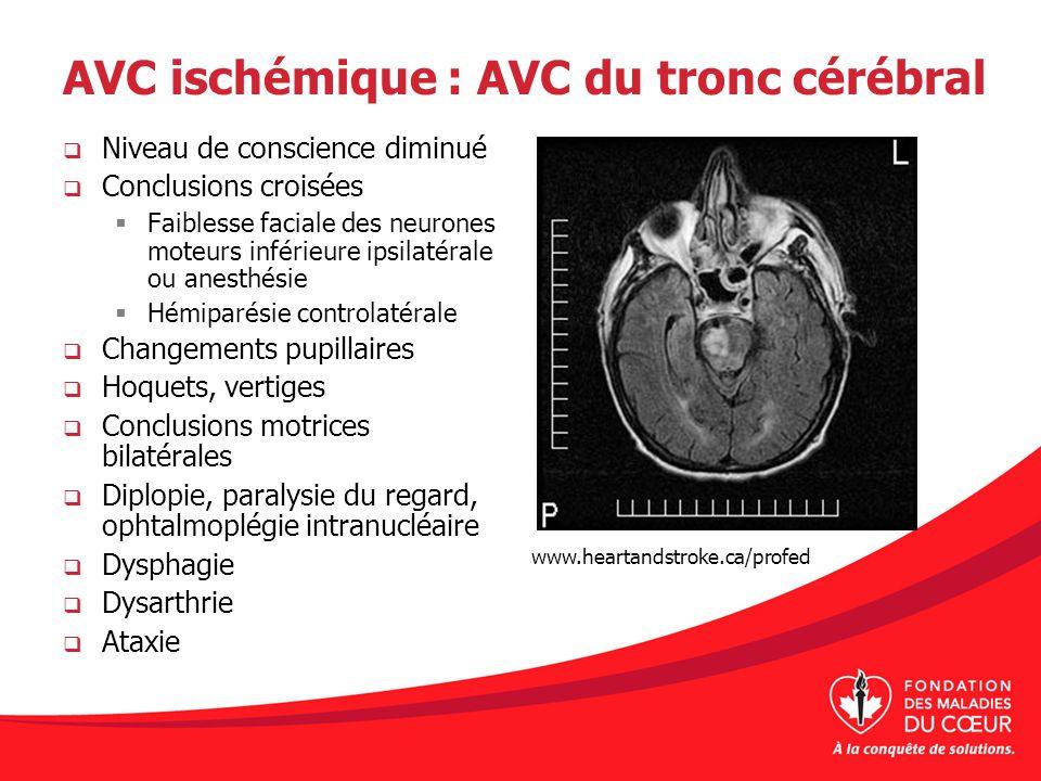 AVC ischémique : AVC du tronc cérébral Niveau de conscience diminué Conclusions croisées Faiblesse faciale des neurones moteurs inférieure ipsilatéral
