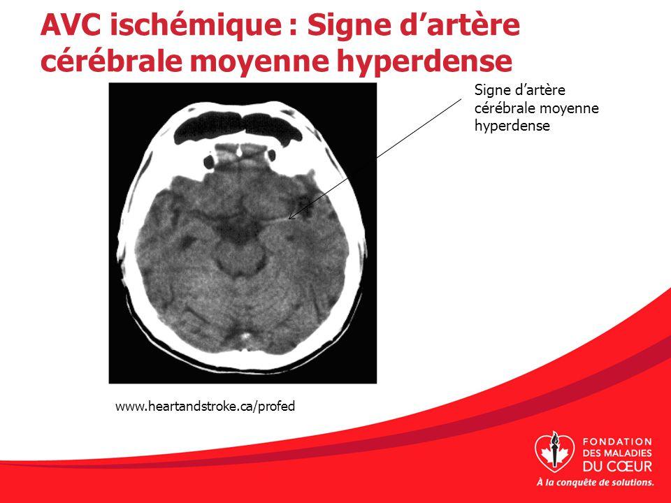 AVC ischémique : Signe dartère cérébrale moyenne hyperdense Signe dartère cérébrale moyenne hyperdense www.heartandstroke.ca/profed
