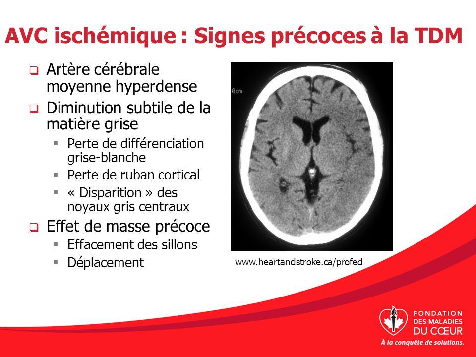 AVC ischémique : Signes précoces à la TDM Artère cérébrale moyenne hyperdense Diminution subtile de la matière grise Perte de différenciation grise-bl