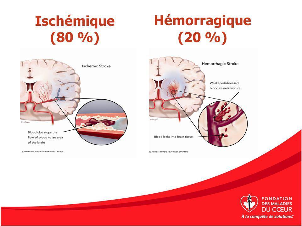 Ischémique (80 %) Hémorragique (20 %)