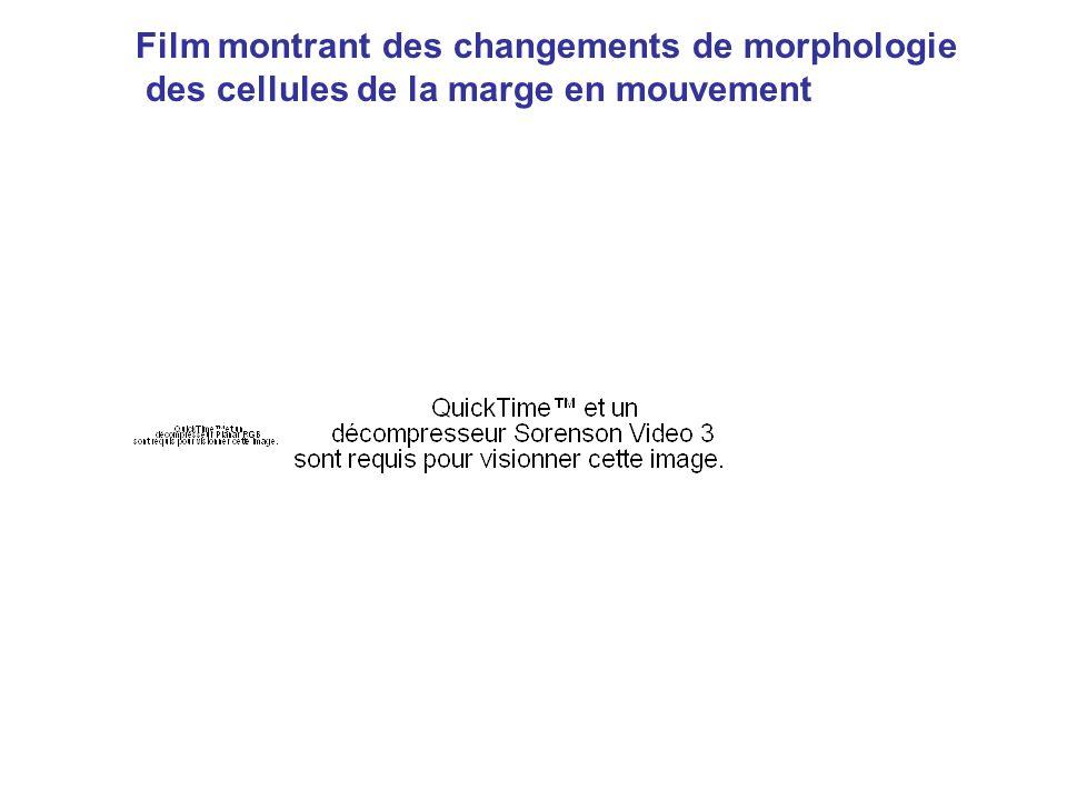 Film montrant des changements de morphologie des cellules de la marge en mouvement
