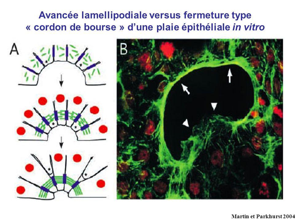 Avancée lamellipodiale versus fermeture type « cordon de bourse » dune plaie épithéliale in vitro Martin et Parkhurst 2004