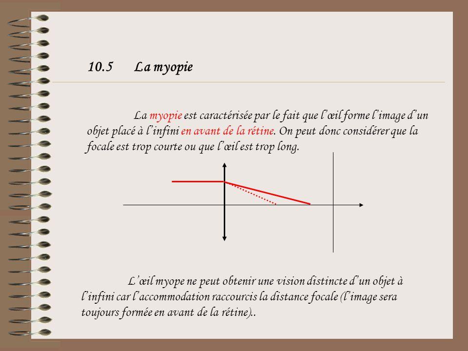 10.4Lœil emmétrope ou normal Lœil est dit emmétrope lorsque son punctum remotum est situé à linfini. Cet œil est donc adapté à la vision de loin sans