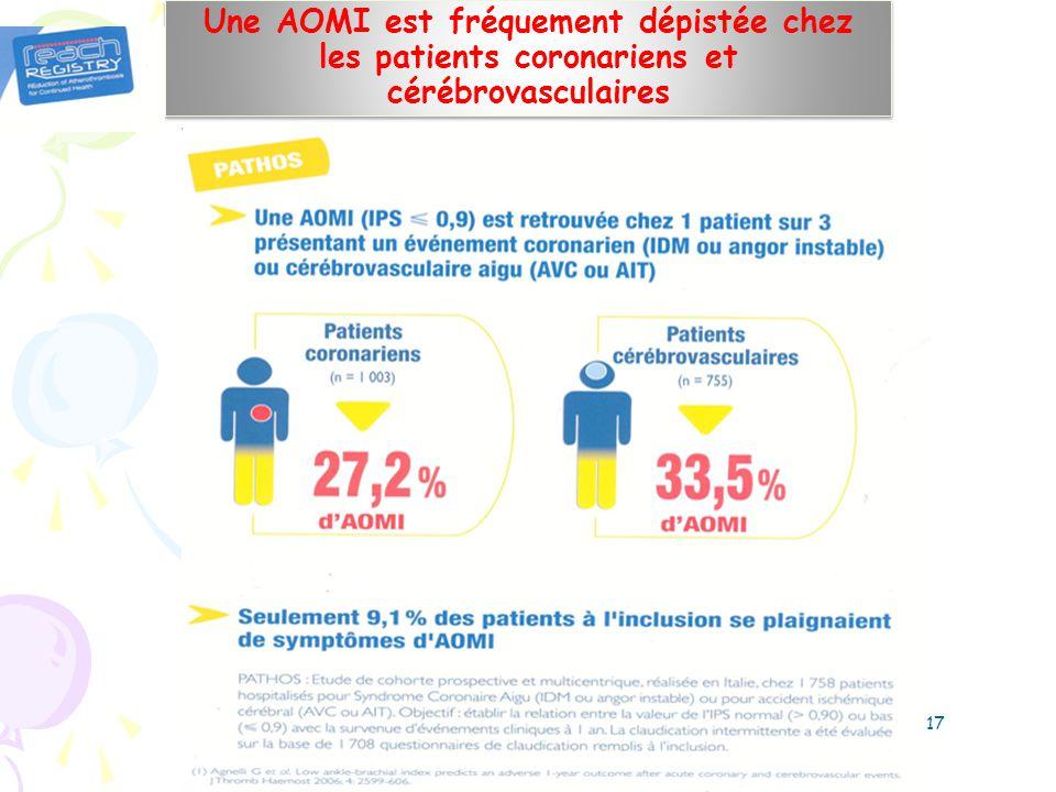 Une AOMI est fréquement dépistée chez les patients coronariens et cérébrovasculaires 17