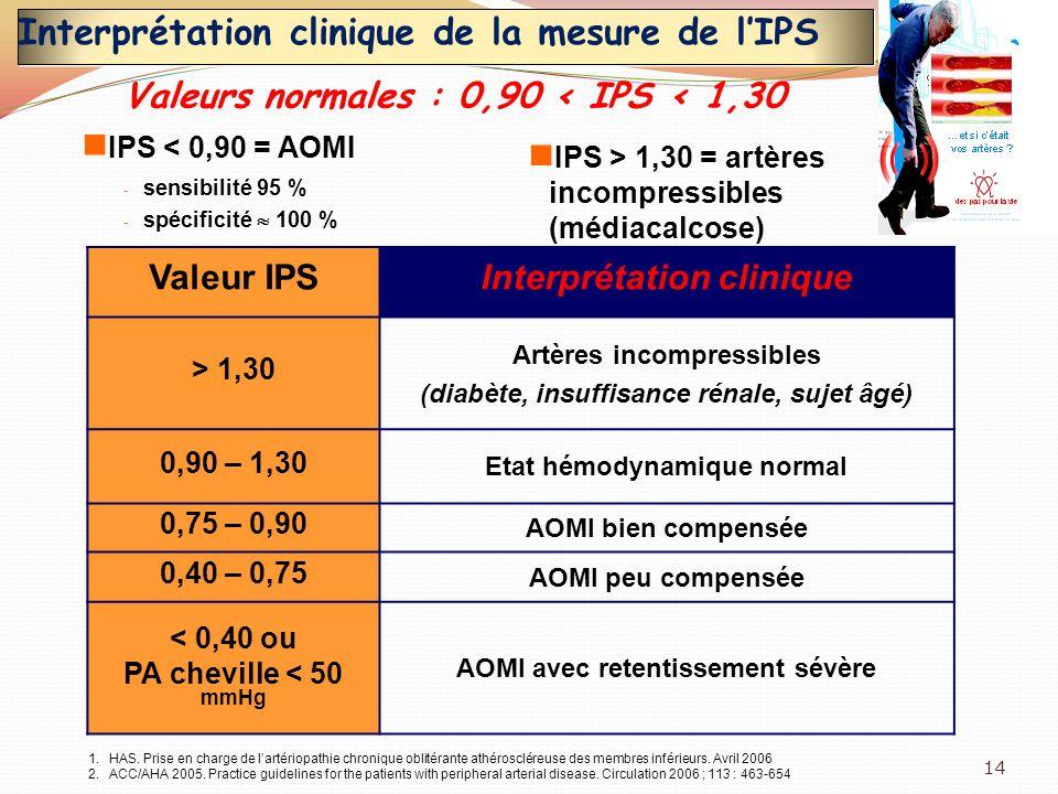 Interprétation clinique de la mesure de lIPS Valeur IPSInterprétation clinique > 1,30 Artères incompressibles (diabète, insuffisance rénale, sujet âgé