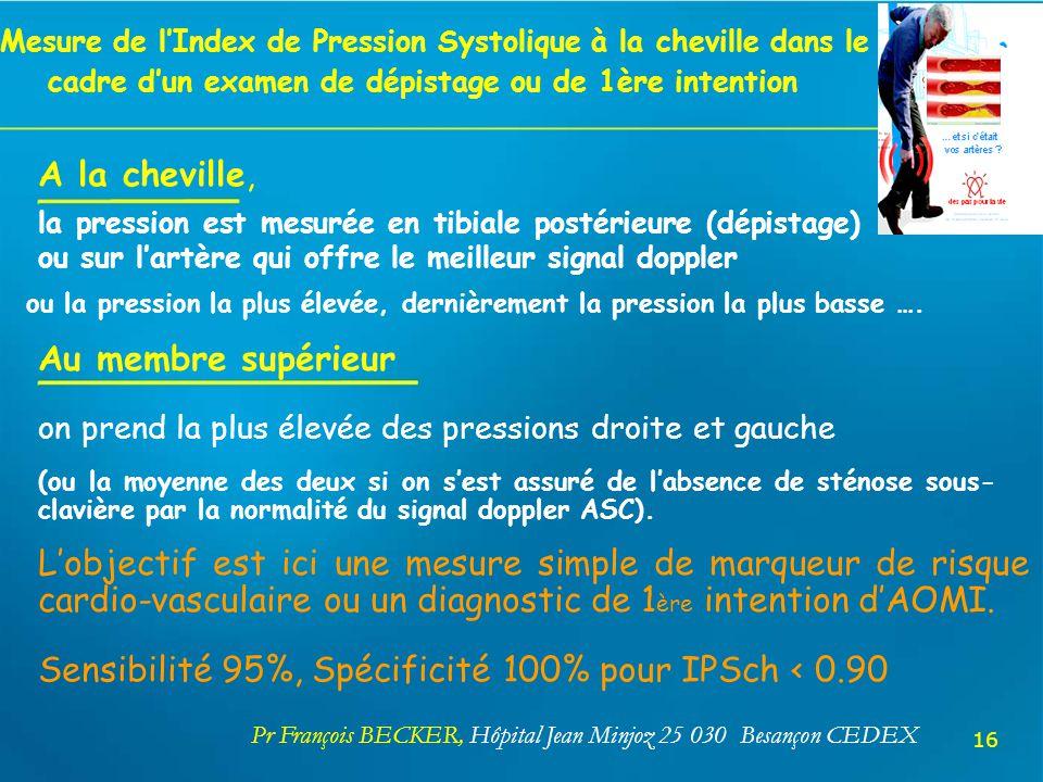 Mesure de lIndex de Pression Systolique à la cheville dans le cadre dun examen de dépistage ou de 1ère intention A la cheville, la pression est mesuré