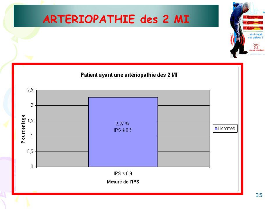 35 ARTERIOPATHIE des 2 MI