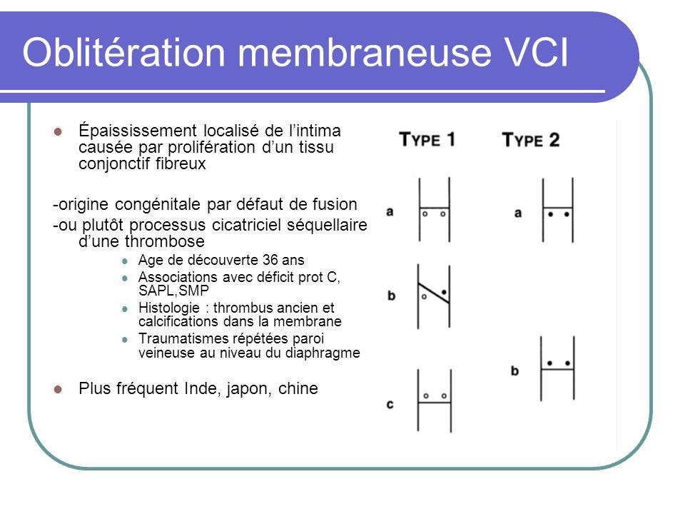 Oblitération membraneuse VCI Épaississement localisé de lintima causée par prolifération dun tissu conjonctif fibreux -origine congénitale par défaut