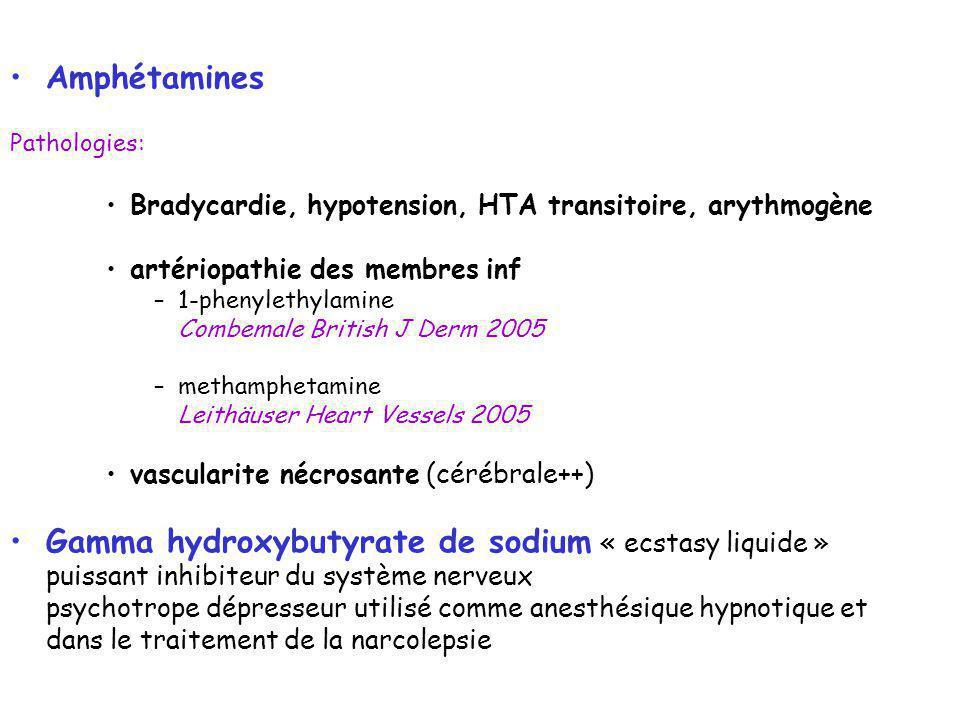 Amphétamines Pathologies: Bradycardie, hypotension, HTA transitoire, arythmogène artériopathie des membres inf –1-phenylethylamine Combemale British J Derm 2005 –methamphetamine Leithäuser Heart Vessels 2005 vascularite nécrosante (cérébrale++) Gamma hydroxybutyrate de sodium « ecstasy liquide » puissant inhibiteur du système nerveux psychotrope dépresseur utilisé comme anesthésique hypnotique et dans le traitement de la narcolepsie