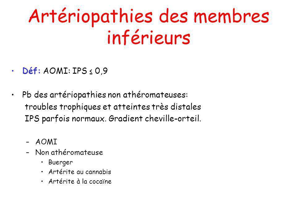 Artériopathies des membres inférieurs Déf: AOMI: IPS 0,9 Pb des artériopathies non athéromateuses: troubles trophiques et atteintes très distales IPS