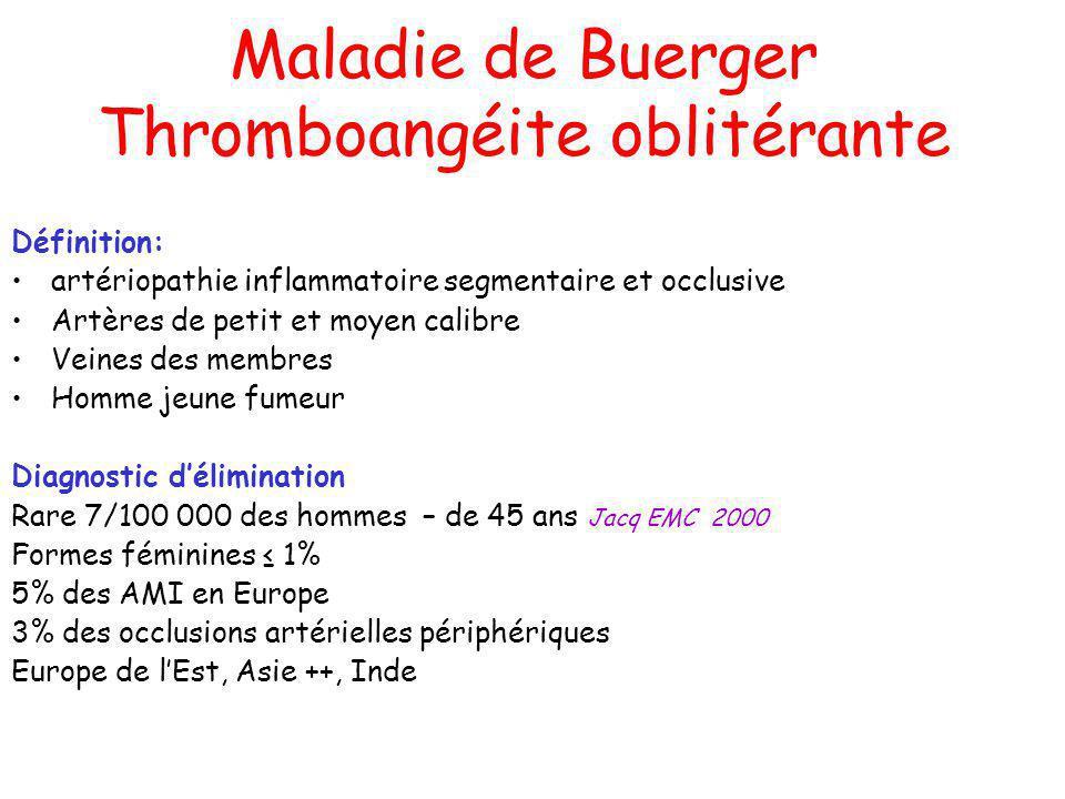 Maladie de Buerger Thromboangéite oblitérante Définition: artériopathie inflammatoire segmentaire et occlusive Artères de petit et moyen calibre Veine
