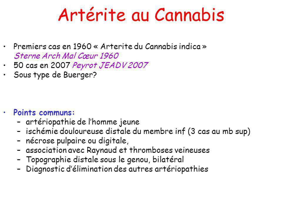 Artérite au Cannabis Premiers cas en 1960 « Arterite du Cannabis indica » Sterne Arch Mal Cœur 1960 50 cas en 2007 Peyrot JEADV 2007 Sous type de Buerger.
