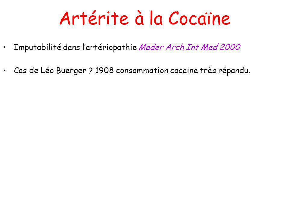Artérite à la Cocaïne Imputabilité dans lartériopathie Mader Arch Int Med 2000 Cas de Léo Buerger ? 1908 consommation cocaïne très répandu.