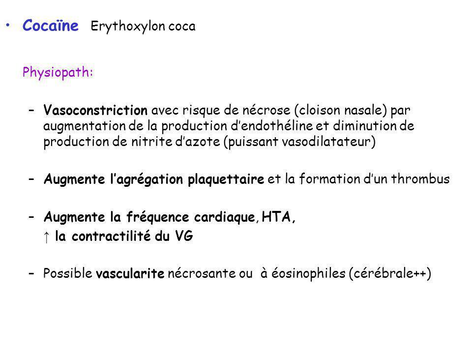 Cocaïne Erythoxylon coca Physiopath: –Vasoconstriction avec risque de nécrose (cloison nasale) par augmentation de la production dendothéline et diminution de production de nitrite dazote (puissant vasodilatateur) –Augmente lagrégation plaquettaire et la formation dun thrombus –Augmente la fréquence cardiaque, HTA, la contractilité du VG –Possible vascularite nécrosante ou à éosinophiles (cérébrale++)