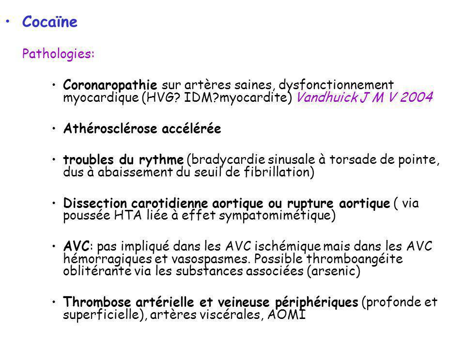 Cocaïne Pathologies: Coronaropathie sur artères saines, dysfonctionnement myocardique (HVG? IDM?myocardite) Vandhuick J M V 2004 Athérosclérose accélé