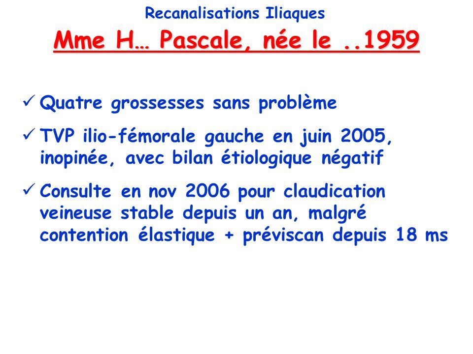 Mme H… Pascale, née le..1959 Recanalisations Iliaques Quatre grossesses sans problème TVP ilio-fémorale gauche en juin 2005, inopinée, avec bilan étio
