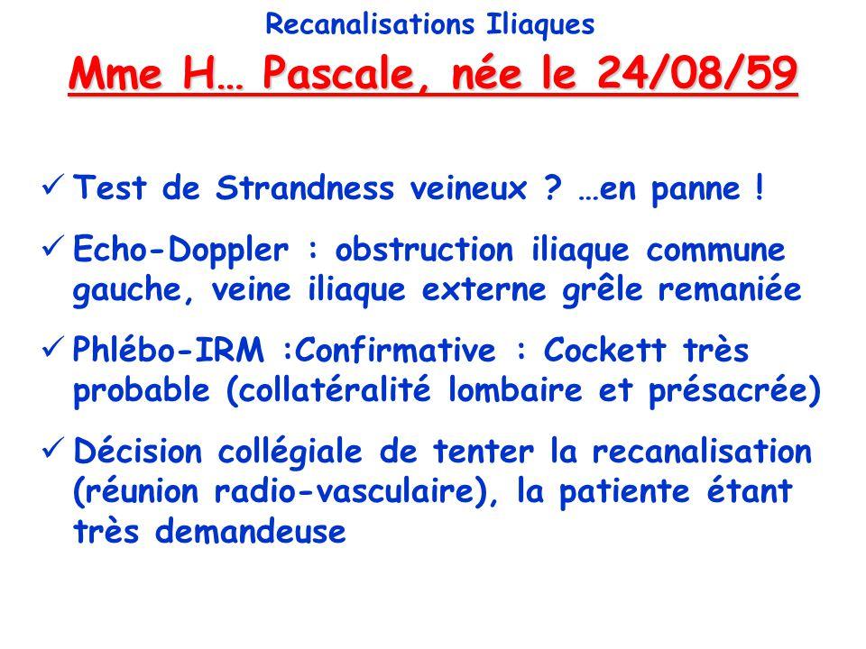 Mme H… Pascale, née le 24/08/59 Recanalisations Iliaques Test de Strandness veineux ? …en panne ! Echo-Doppler : obstruction iliaque commune gauche, v