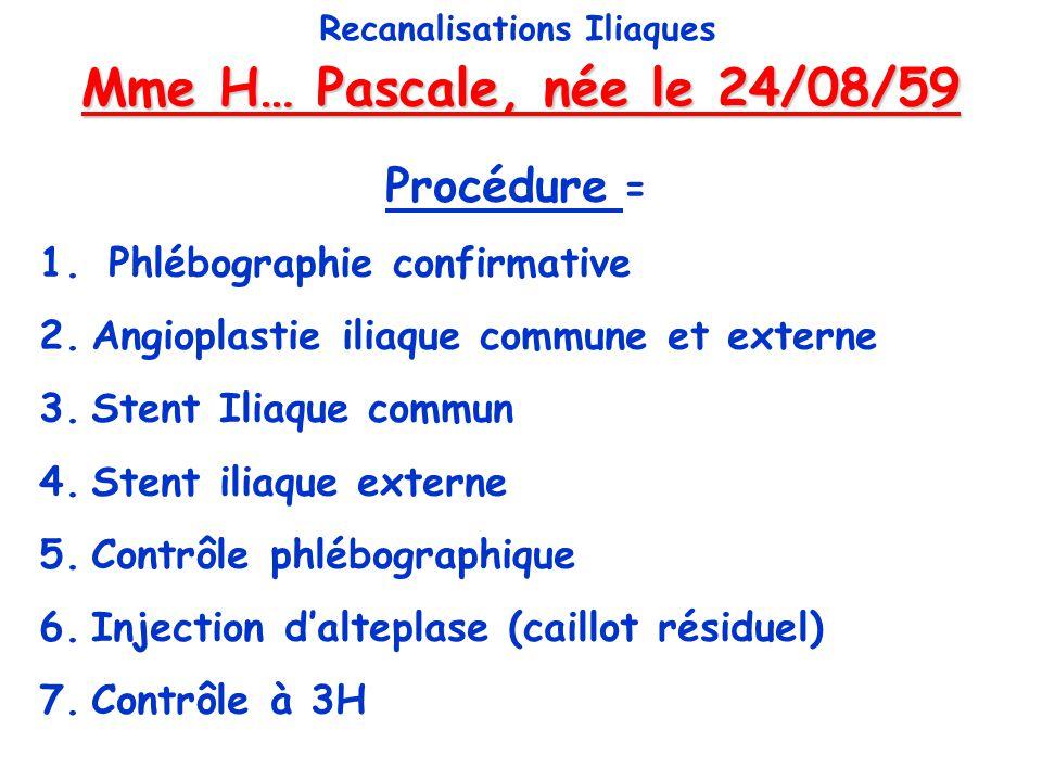 Mme H… Pascale, née le 24/08/59 Recanalisations Iliaques Procédure = 1. Phlébographie confirmative 2.Angioplastie iliaque commune et externe 3.Stent I
