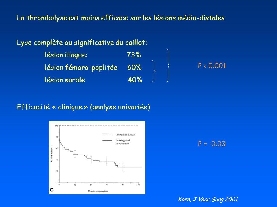 La thrombolyse est moins efficace sur les lésions médio-distales Lyse complète ou significative du caillot: lésion iliaque: 73% lésion fémoro-poplitée