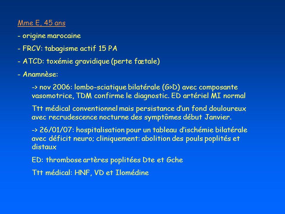 Mme E, 45 ans - origine marocaine - FRCV: tabagisme actif 15 PA - ATCD: toxémie gravidique (perte fœtale) - Anamnèse: -> nov 2006: lombo-sciatique bil