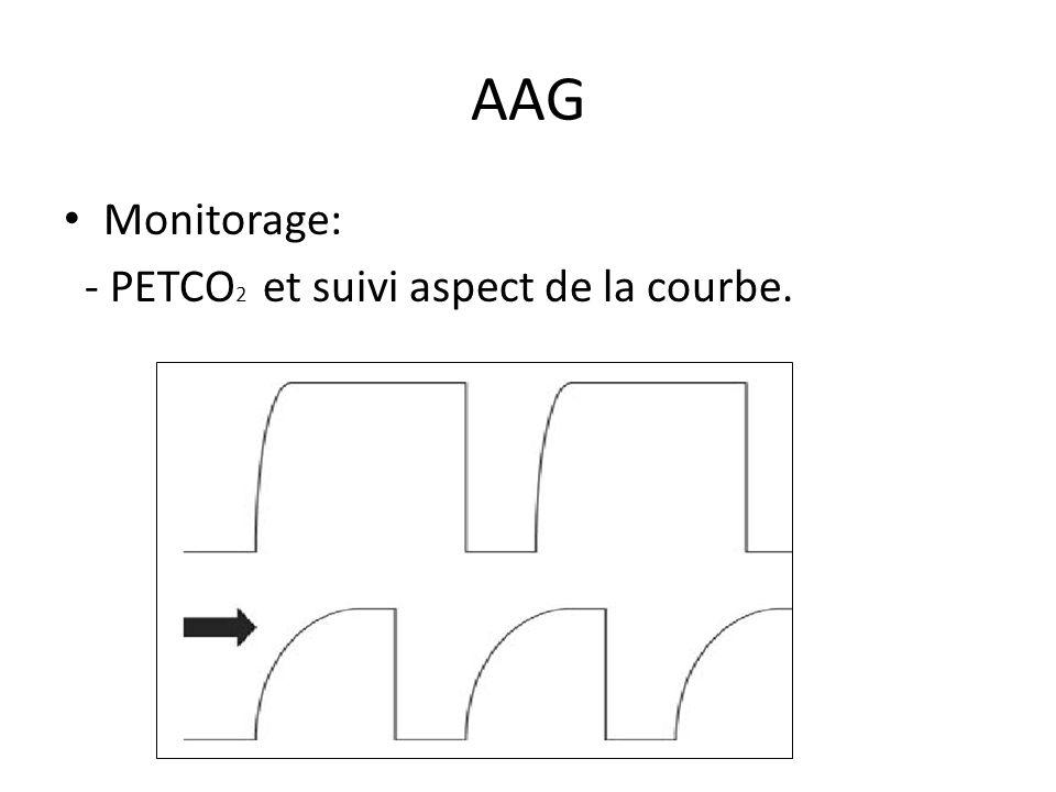 AAG Monitorage: - PETCO 2 et suivi aspect de la courbe.