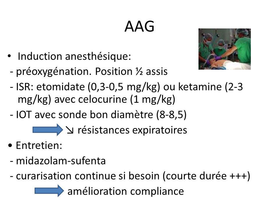 AAG Induction anesthésique: - préoxygénation. Position ½ assis - ISR: etomidate (0,3-0,5 mg/kg) ou ketamine (2-3 mg/kg) avec celocurine (1 mg/kg) - IO