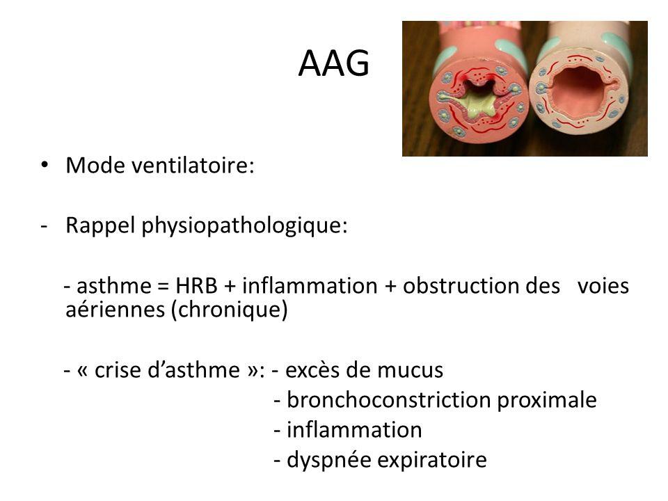 AAG Mode ventilatoire: -Rappel physiopathologique: - asthme = HRB + inflammation + obstruction des voies aériennes (chronique) - « crise dasthme »: -
