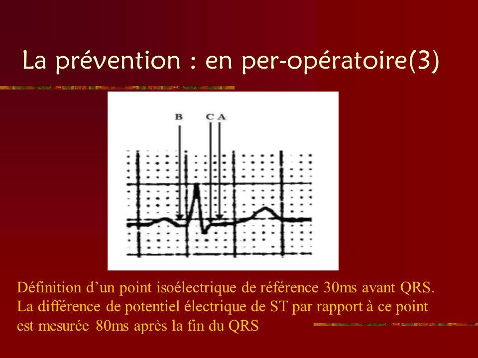 La prévention : en per-opératoire(3) Définition dun point isoélectrique de référence 30ms avant QRS. La différence de potentiel électrique de ST par r