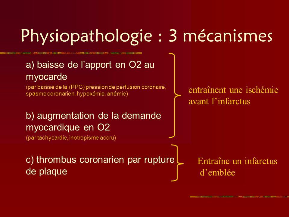 Physiopathologie : 3 mécanismes a) baisse de lapport en O2 au myocarde (par baisse de la (PPC) pression de perfusion coronaire, spasme coronarien, hyp