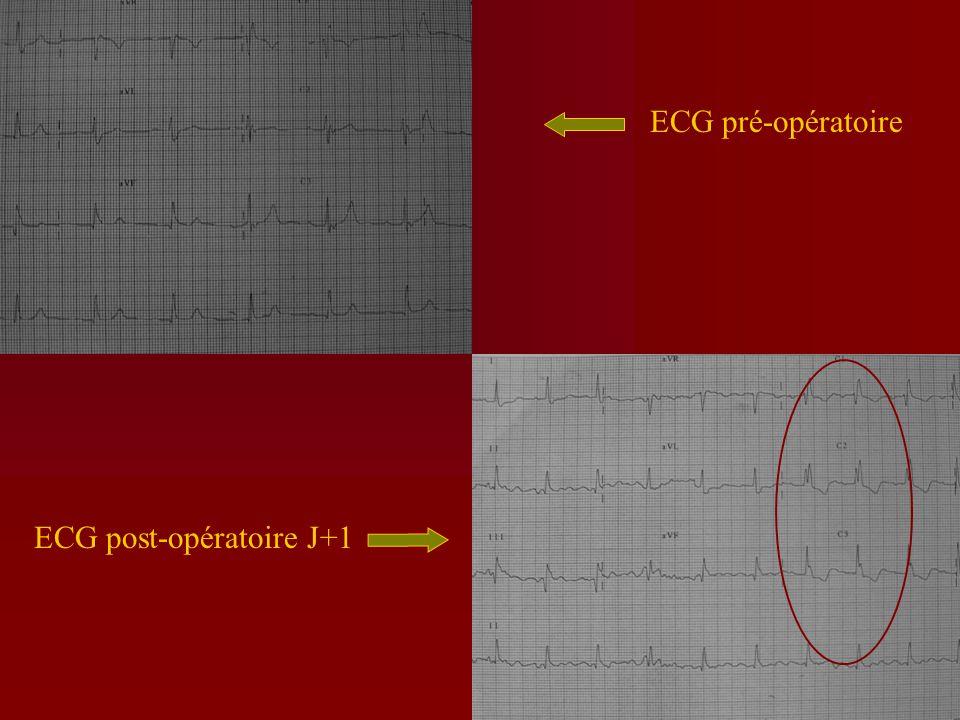 La prévention : en post-opératoire(2) ECG répétés pendant les 1 e jours Contrôle de lanalgésie, de lanémie, de lhypoxémie, de lhypovolémie Contrôle des paramètres hémodynamiques (pas HTA, pas de tachycardie)
