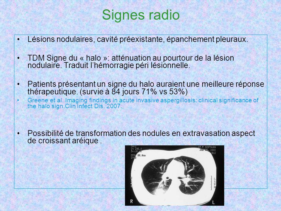 Signes radio Lésions nodulaires, cavité préexistante, épanchement pleuraux. TDM Signe du « halo »: atténuation au pourtour de la lésion nodulaire. Tra