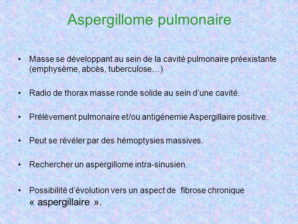 Aspergillome pulmonaire Masse se développant au sein de la cavité pulmonaire préexistante (emphysème, abcès, tuberculose…) Radio de thorax masse ronde solide au sein dune cavité.