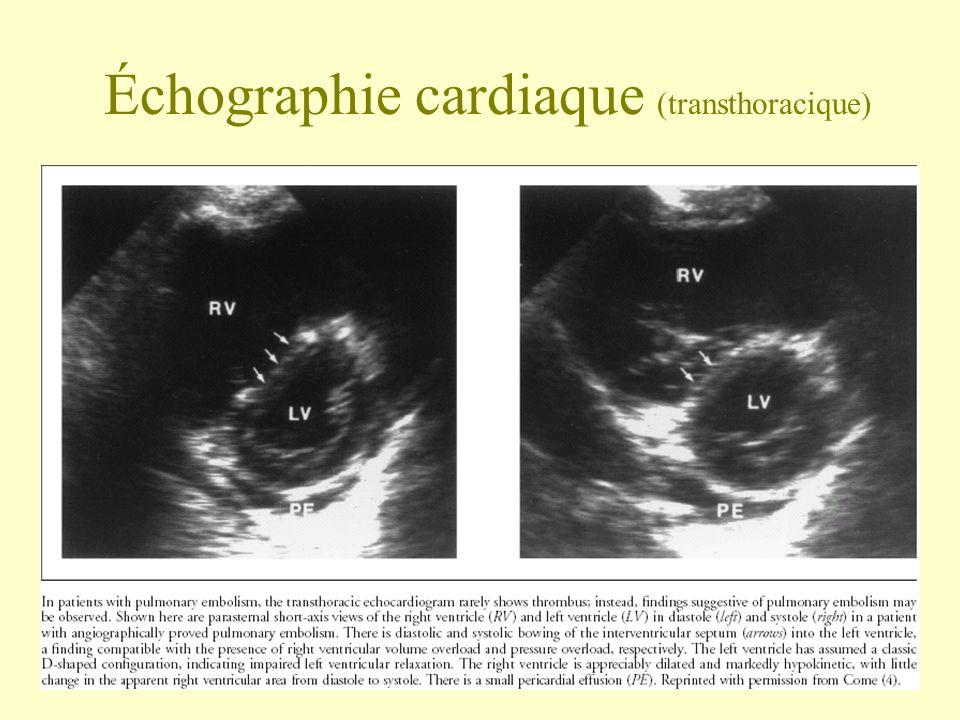 Échographie cardiaque (transthoracique)