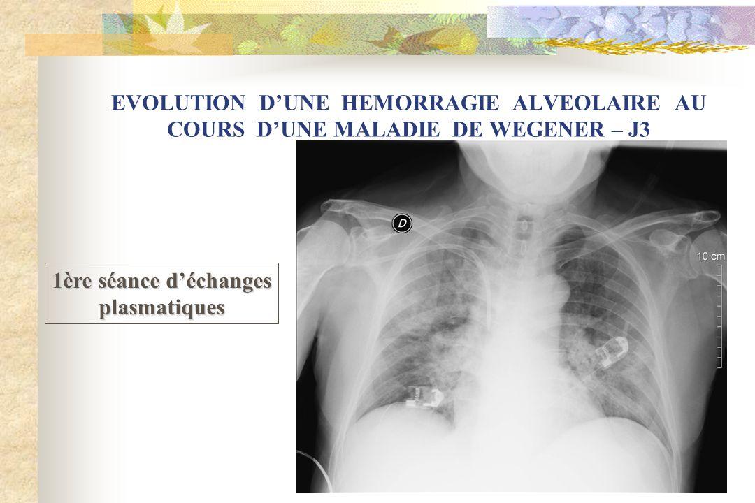 EVOLUTION DUNE HEMORRAGIE ALVEOLAIRE AU COURS DUNE MALADIE DE WEGENER – J3 1ère séance déchanges plasmatiques