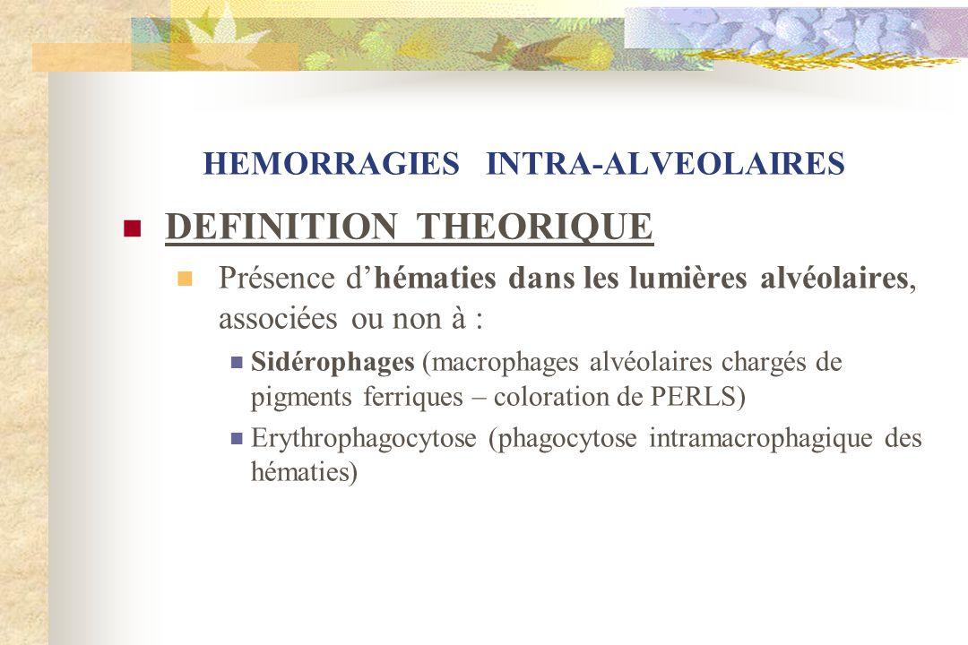 HEMORRAGIES INTRA-ALVEOLAIRES DEFINITION THEORIQUE Présence dhématies dans les lumières alvéolaires, associées ou non à : Sidérophages (macrophages al