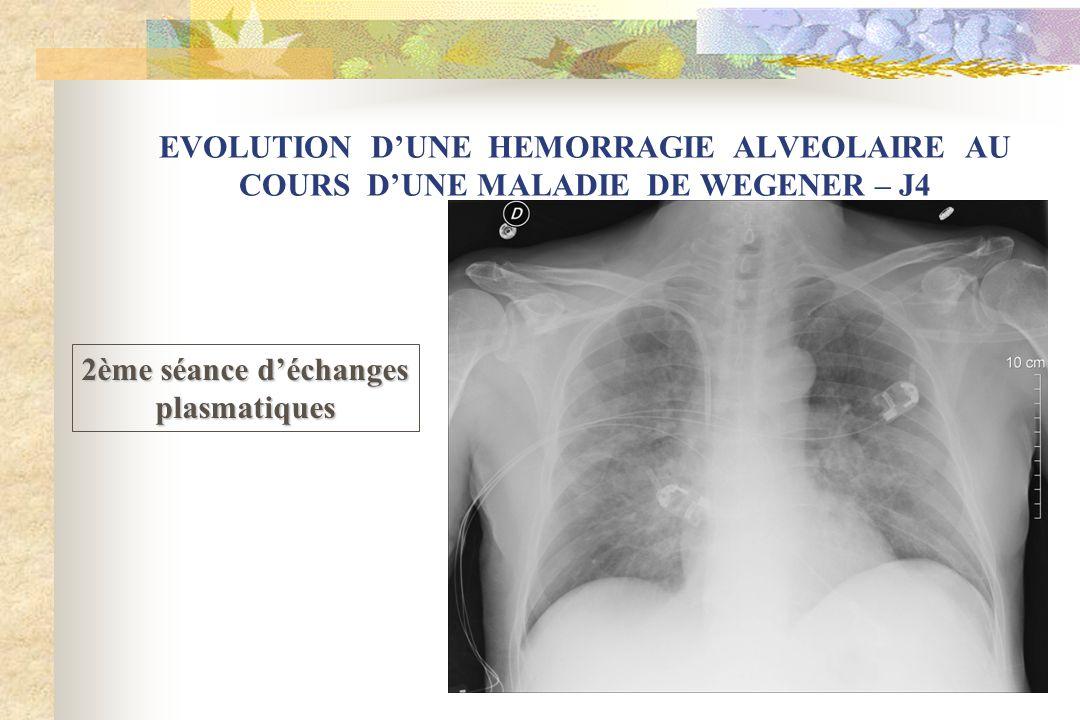 EVOLUTION DUNE HEMORRAGIE ALVEOLAIRE AU COURS DUNE MALADIE DE WEGENER – J4 2ème séance déchanges plasmatiques