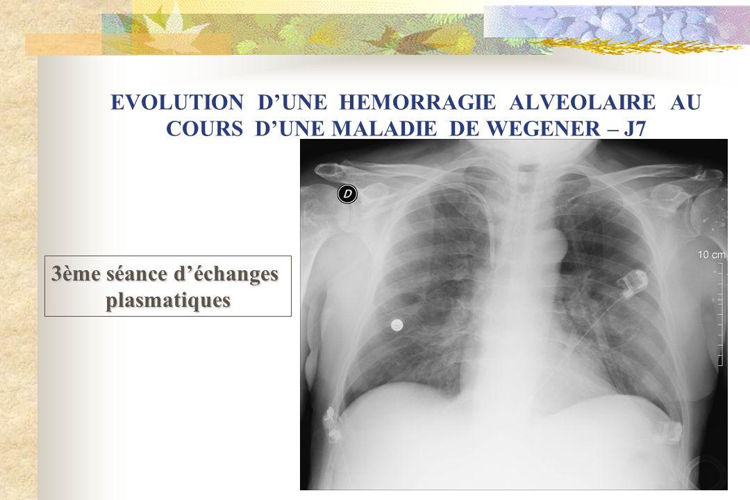 EVOLUTION DUNE HEMORRAGIE ALVEOLAIRE AU COURS DUNE MALADIE DE WEGENER – J7 3ème séance déchanges plasmatiques
