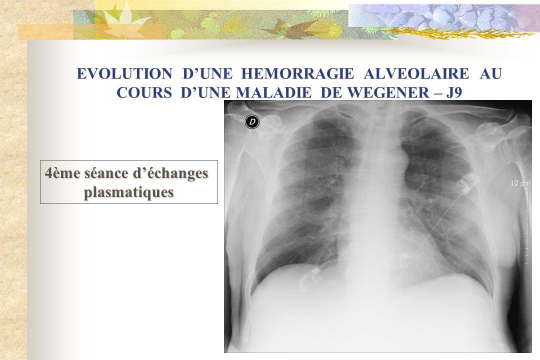 EVOLUTION DUNE HEMORRAGIE ALVEOLAIRE AU COURS DUNE MALADIE DE WEGENER – J9 4ème séance déchanges plasmatiques