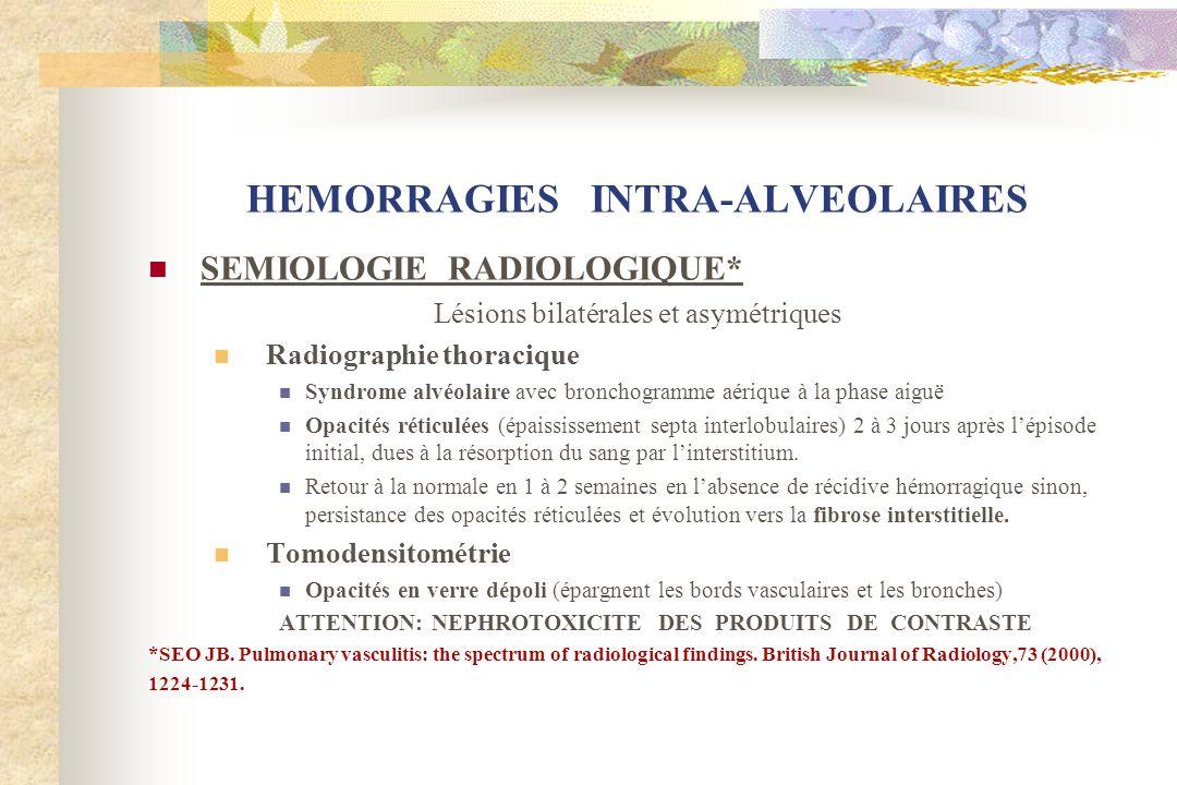 HEMORRAGIES INTRA-ALVEOLAIRES SEMIOLOGIE RADIOLOGIQUE* Lésions bilatérales et asymétriques Radiographie thoracique Syndrome alvéolaire avec bronchogra