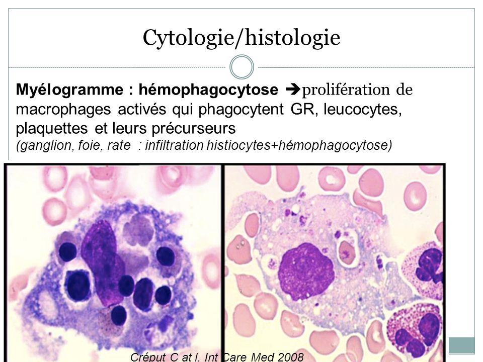 Cytologie/histologie Myélogramme : hémophagocytose prolifération de macrophages activés qui phagocytent GR, leucocytes, plaquettes et leurs précurseur