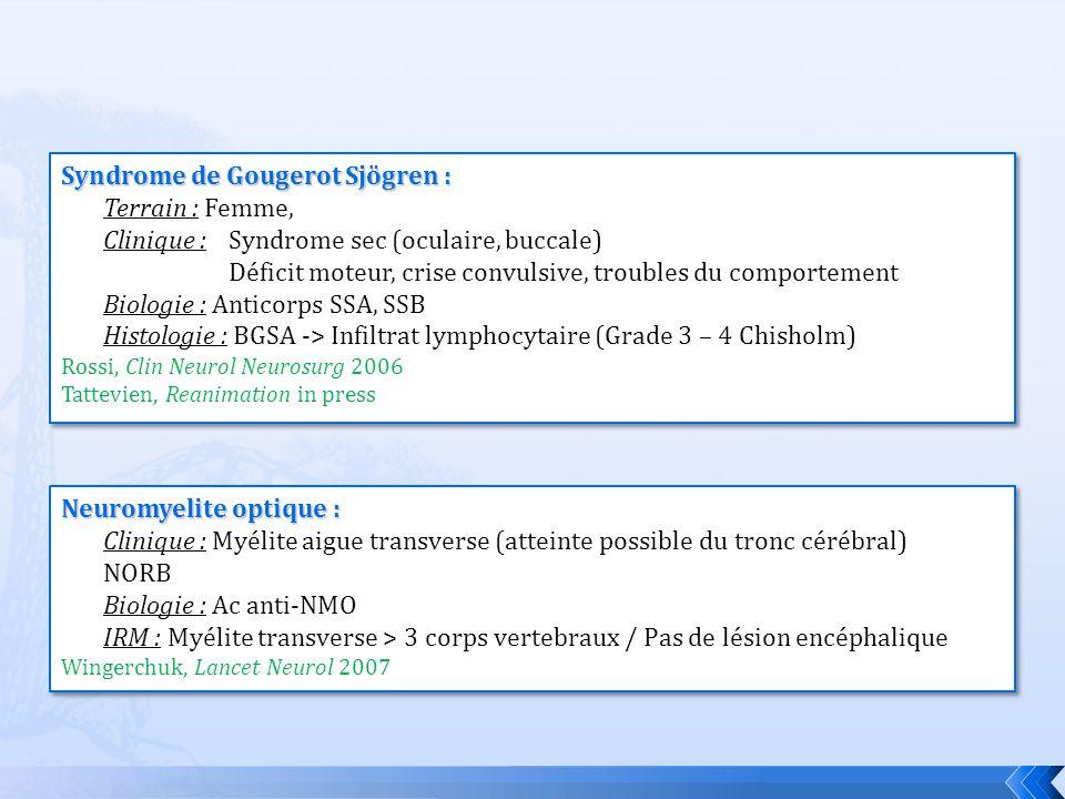 Syndrome de Gougerot Sjögren : Terrain : Femme, Clinique : Syndrome sec (oculaire, buccale) Déficit moteur, crise convulsive, troubles du comportement