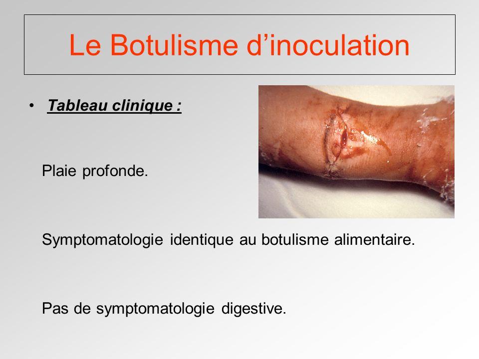 Le Botulisme dinoculation Tableau clinique : Plaie profonde.