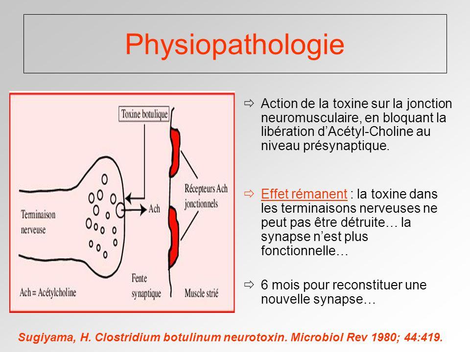 Physiopathologie Action de la toxine sur la jonction neuromusculaire, en bloquant la libération dAcétyl-Choline au niveau présynaptique.